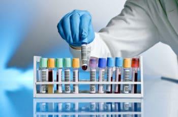 Exame Toxicológico: Saiba Como Funciona e Renove a CNH Sem Correr Riscos